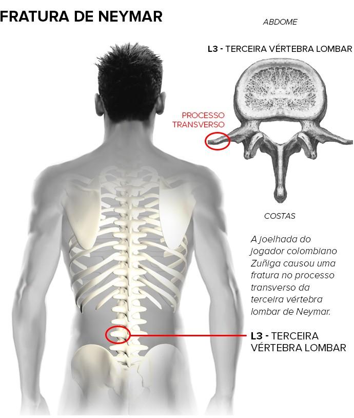Neymar y todo lo que necesitas saber sobre su fractura de vértebra ...