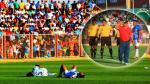 Copa Perú: jugadores fingieron lesiones para que se termine un partido - Noticias de bagua grande