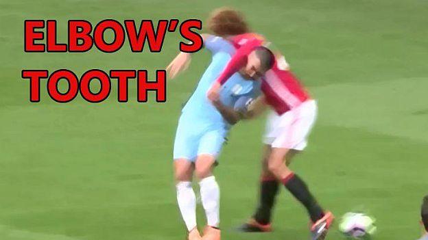 Kolarov perdió diente en el Derbi de Manchester